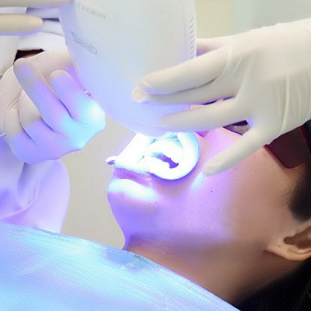 esthetique-Dentisterie-esthetique-Blanchiment_des_dents-Lachat-Grenoble
